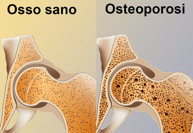 Il Pilates e l'Osteoporosi