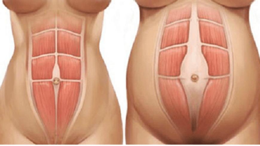 Pilates e Diastasi addominale