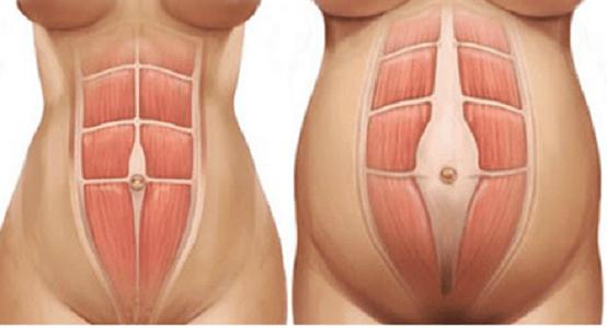 leccesso di grasso addominale può causare dolore pelvico